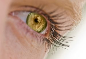 Cataracts FAQs